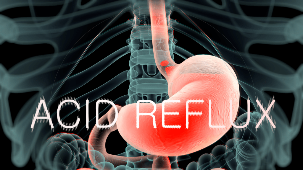 reduced acid coffee and acid reflux